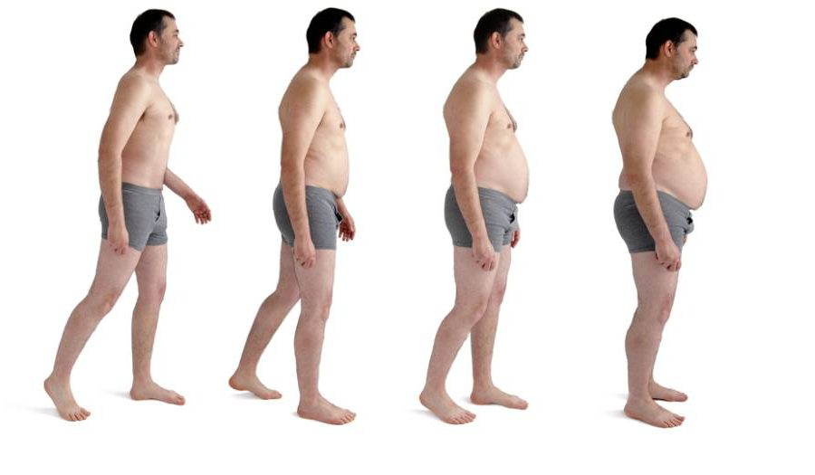 stages_of_obesity